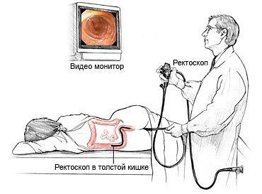 Кал с кровью (кровь из заднего прохода): причины, что делать – НаПоправку